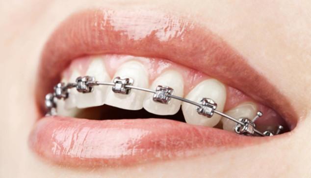 I vantaggi di applicare un apparecchio ai denti